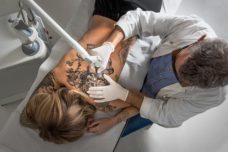 RewindTattoo - Rimozione Tatuaggi con il laser Q-Switched